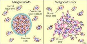 Cancer in Hindi, मेटास्टेसिस क्या है?, Types of tumor in Hindi, ट्यूमर के प्रकार, कैंसर के कारण Causes of cancer in Hindi, Cancer class 12, कैंसर का इलाज Treatment of cancer in hindi